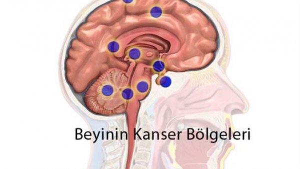 Türk doktordan kanser tedavisinde çığır açacak buluş