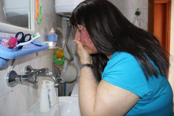 Güneşe çıkamayan kadın su ile temas kurdu